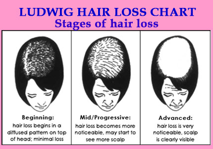wigs for people with hair loss